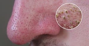 12 Ways to Eliminate Blackheads Without Leaving Home