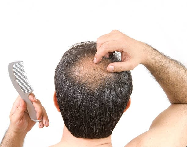 The Truth About Hair Loss - What Is It?